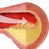 ☞ Colesterol y triglicéridos