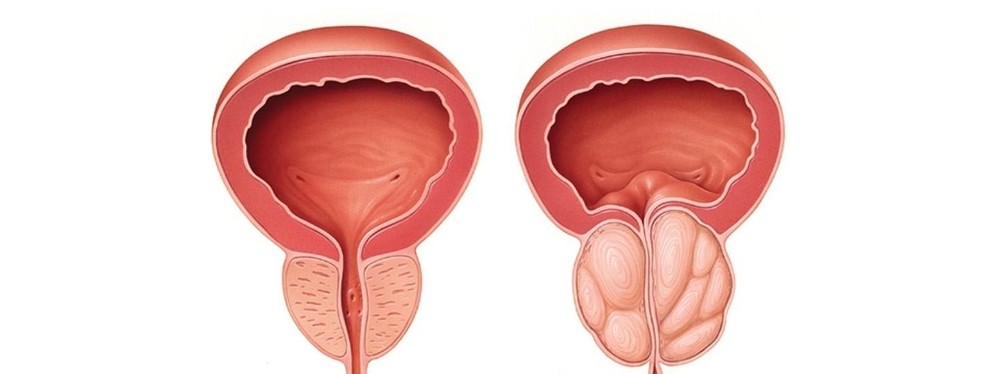 Próstata y vías urinarias